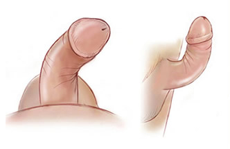 Curvatura Peniana (Doença de Peyronie)
